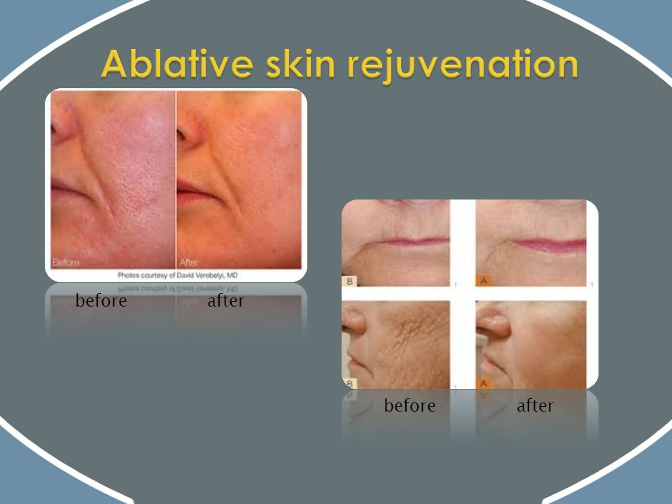 Ablative skin rejuvenation