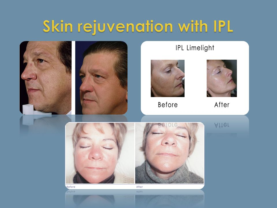 Skin rejuvenation with IPL