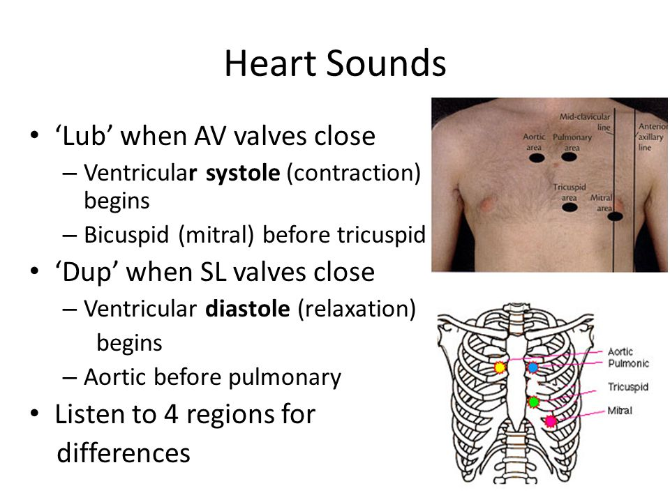 Heart Sounds 'Lub' when AV valves close 'Dup' when SL valves close