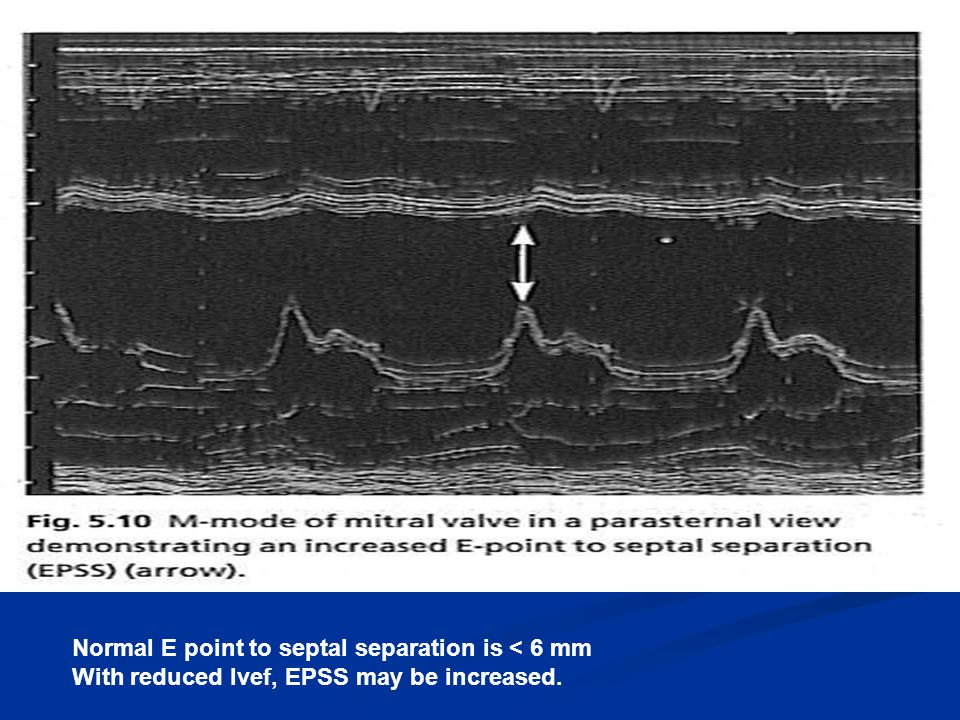 Normal E point to septal separation is < 6 mm