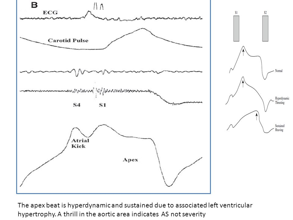 The apex beat is hyperdynamic and sustained due to associated left ventricular hypertrophy.