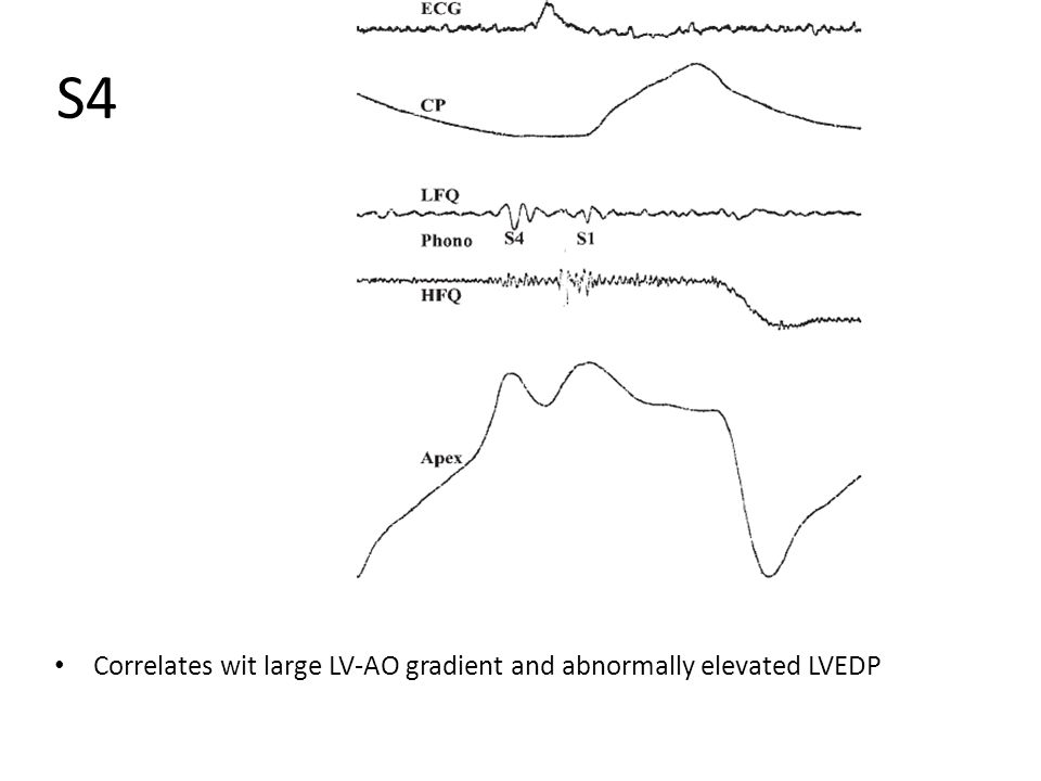 S4 Correlates wit large LV-AO gradient and abnormally elevated LVEDP