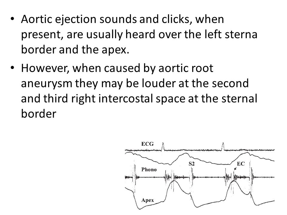 Aortic ejection sounds and clicks, when present, are usually heard over the left sterna border and the apex.