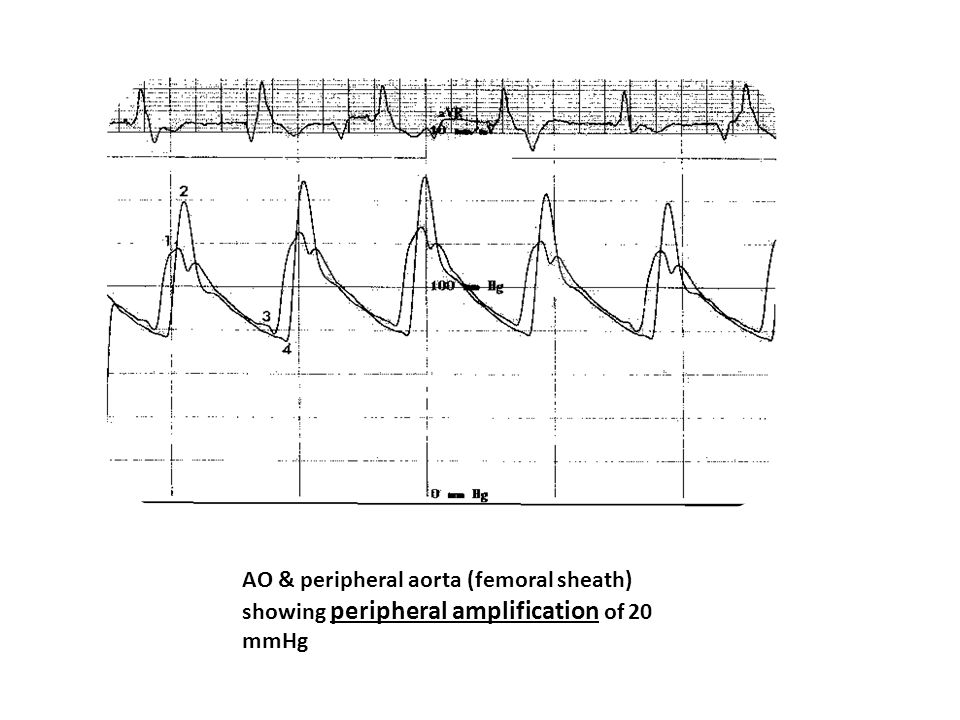 AO & peripheral aorta (femoral sheath) showing peripheral amplification of 20 mmHg
