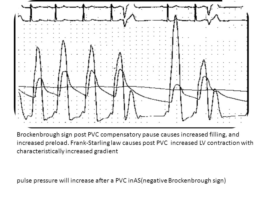 pulse pressure will increase after a PVC (negative Brockenbrough sign)