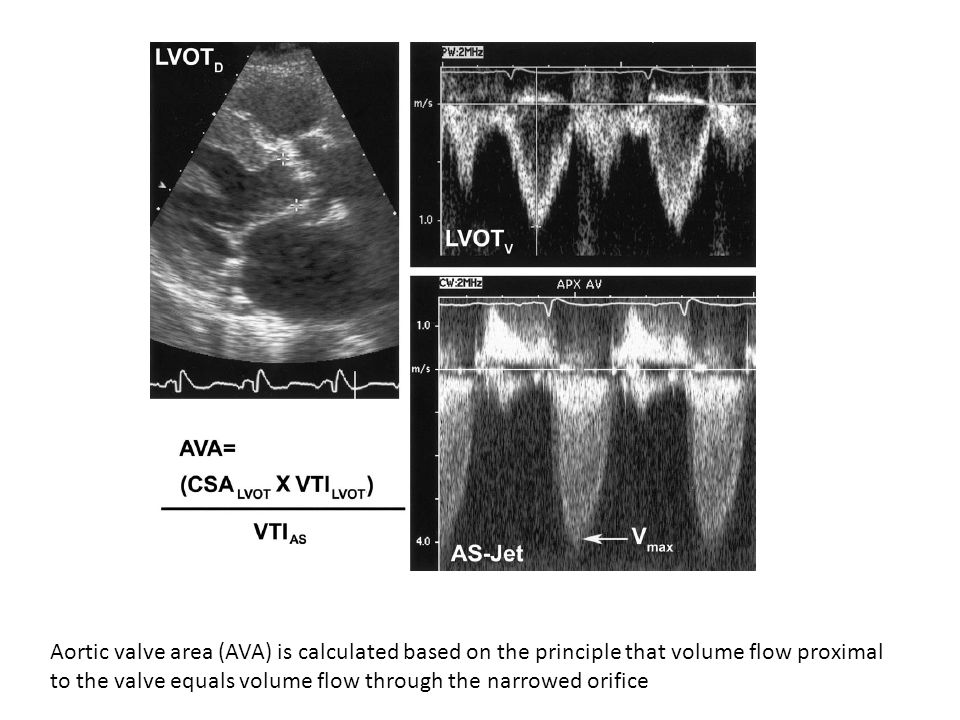 Aortic valve area (AVA) is calculated based on the principle that volume flow proximal to the valve equals volume flow through the narrowed orifice