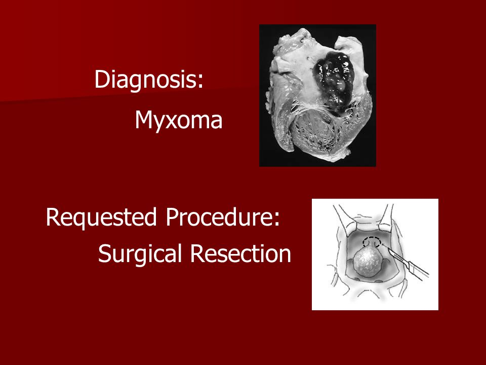 Diagnosis: Myxoma Requested Procedure: Surgical Resection