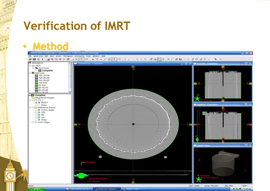 Verification of IMRT Method ArcCheck CT scanned
