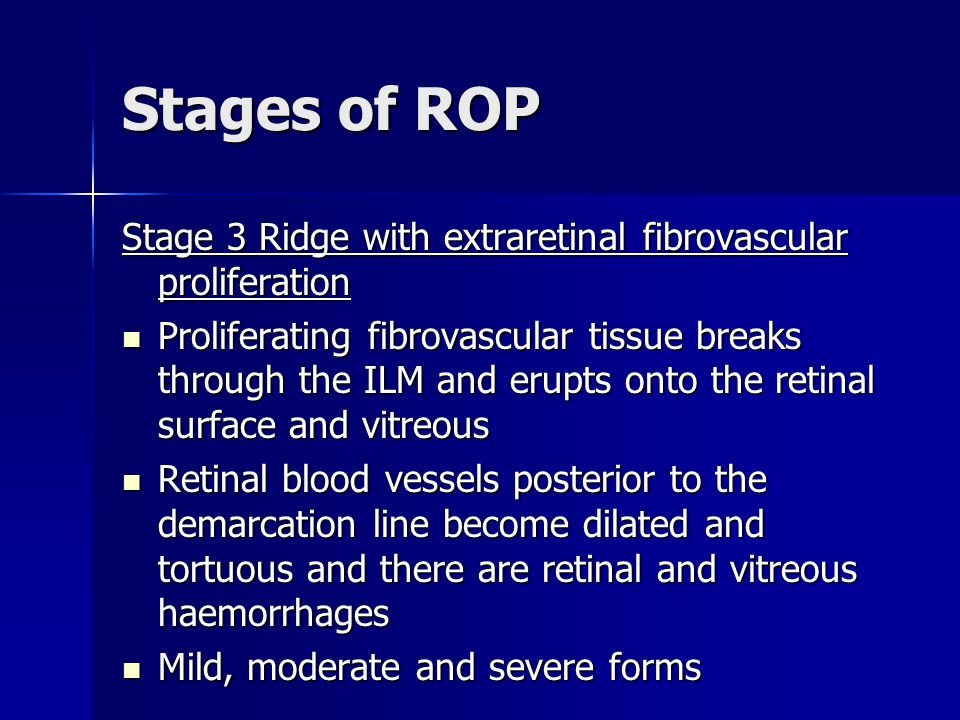 Stages of ROP Stage 3 Ridge with extraretinal fibrovascular proliferation.
