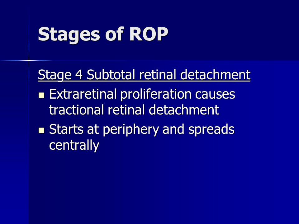 Stages of ROP Stage 4 Subtotal retinal detachment