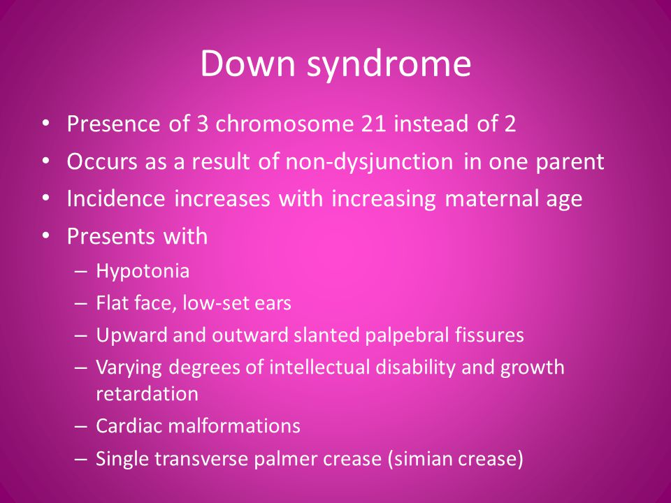 Down syndrome Presence of 3 chromosome 21 instead of 2
