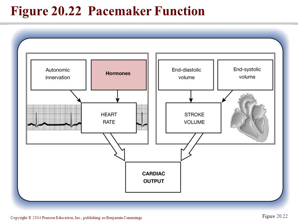 Figure 20.22 Pacemaker Function