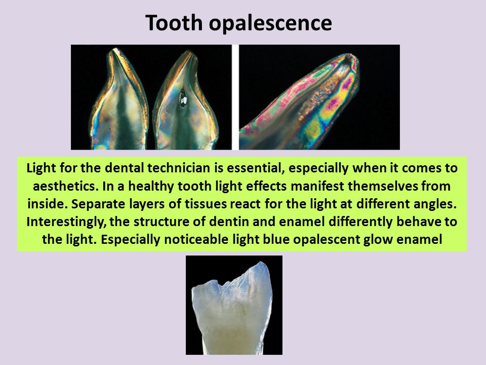 Tooth opalescence