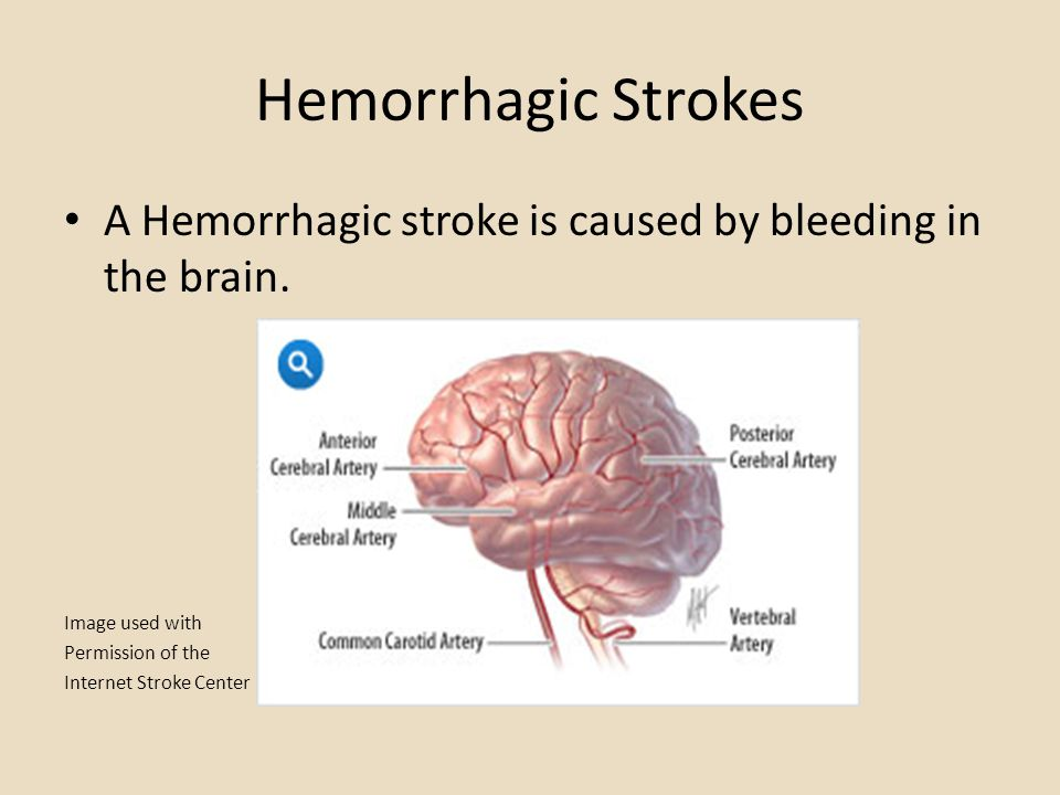 Hemorrhagic Strokes A Hemorrhagic stroke is caused by bleeding in the brain. Image used with. Permission of the.