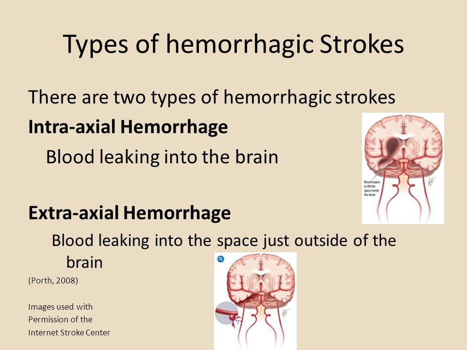 Types of hemorrhagic Strokes