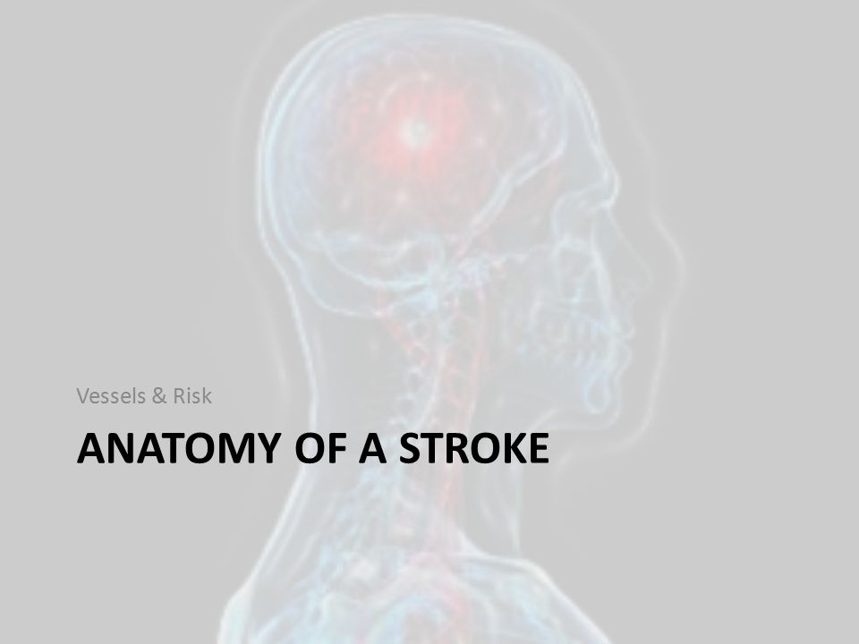 Vessels & Risk ANATOMY OF A STROKE