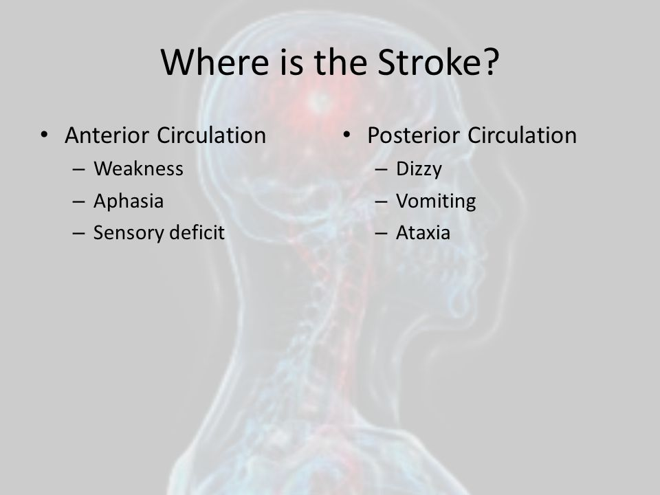 Where is the Stroke Anterior Circulation Posterior Circulation