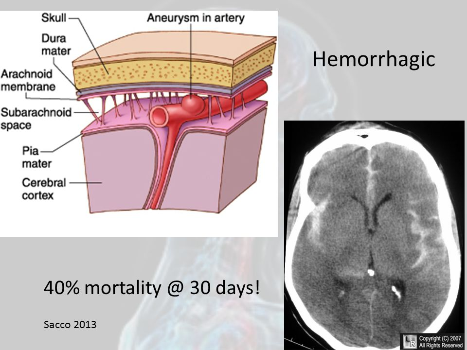 Hemorrhagic 40% mortality @ 30 days! Sacco 2013