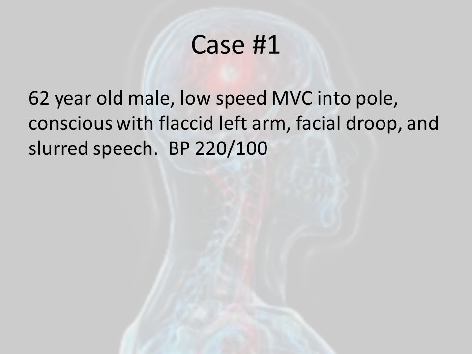 Case #1 62 year old male, low speed MVC into pole, conscious with flaccid left arm, facial droop, and slurred speech.