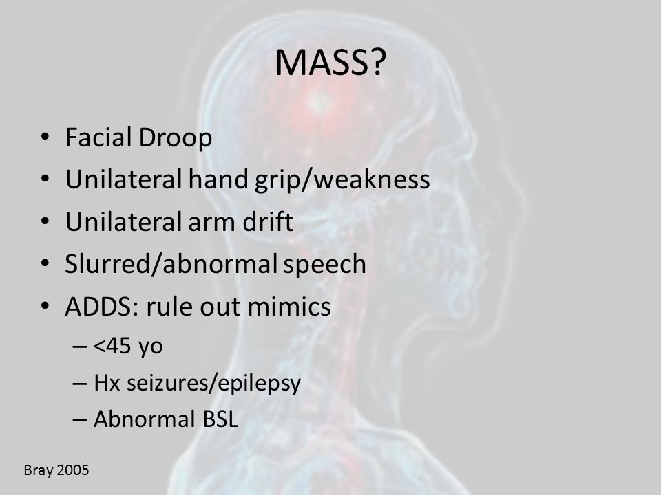 MASS Facial Droop Unilateral hand grip/weakness Unilateral arm drift