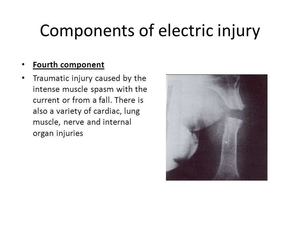 Components of electric injury