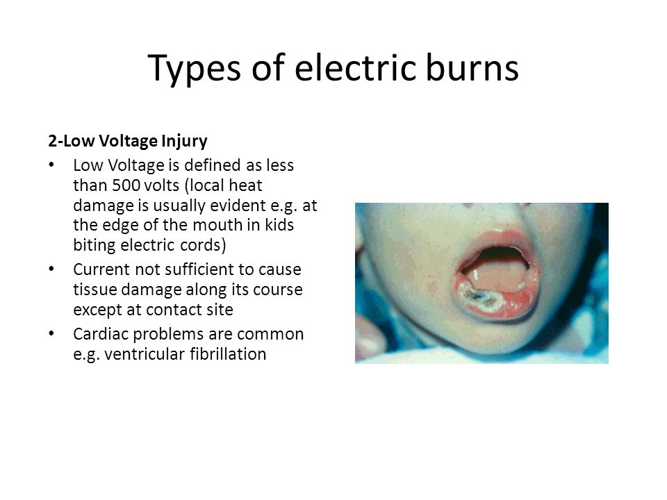 Types of electric burns
