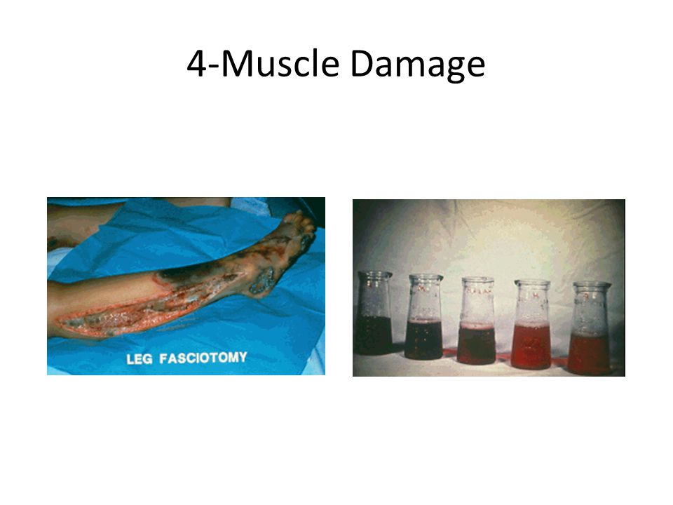 4-Muscle Damage