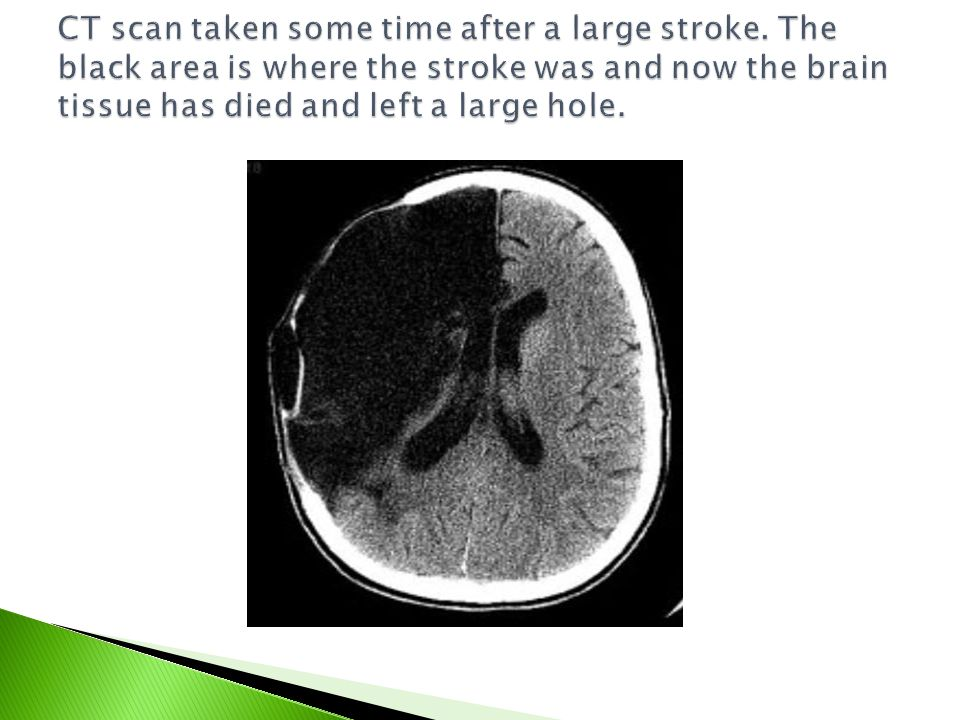 CT scan taken some time after a large stroke