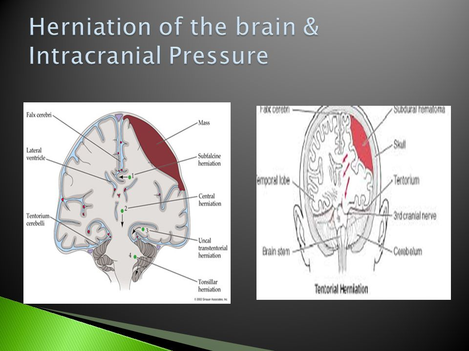 Herniation of the brain & Intracranial Pressure