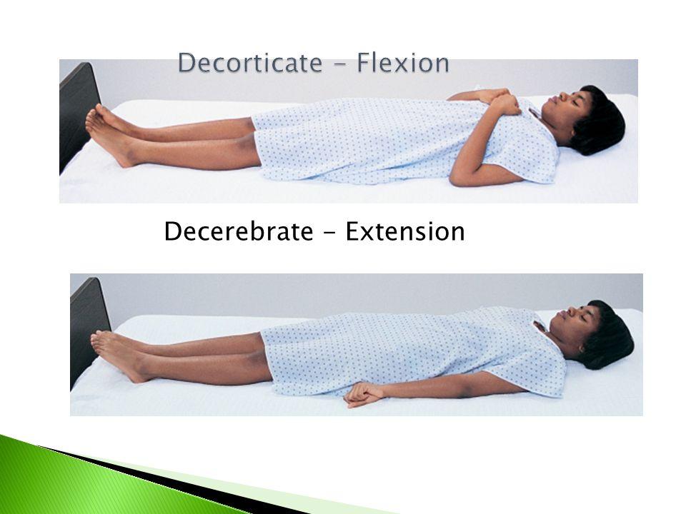 Decorticate - Flexion Decerebrate - Extension