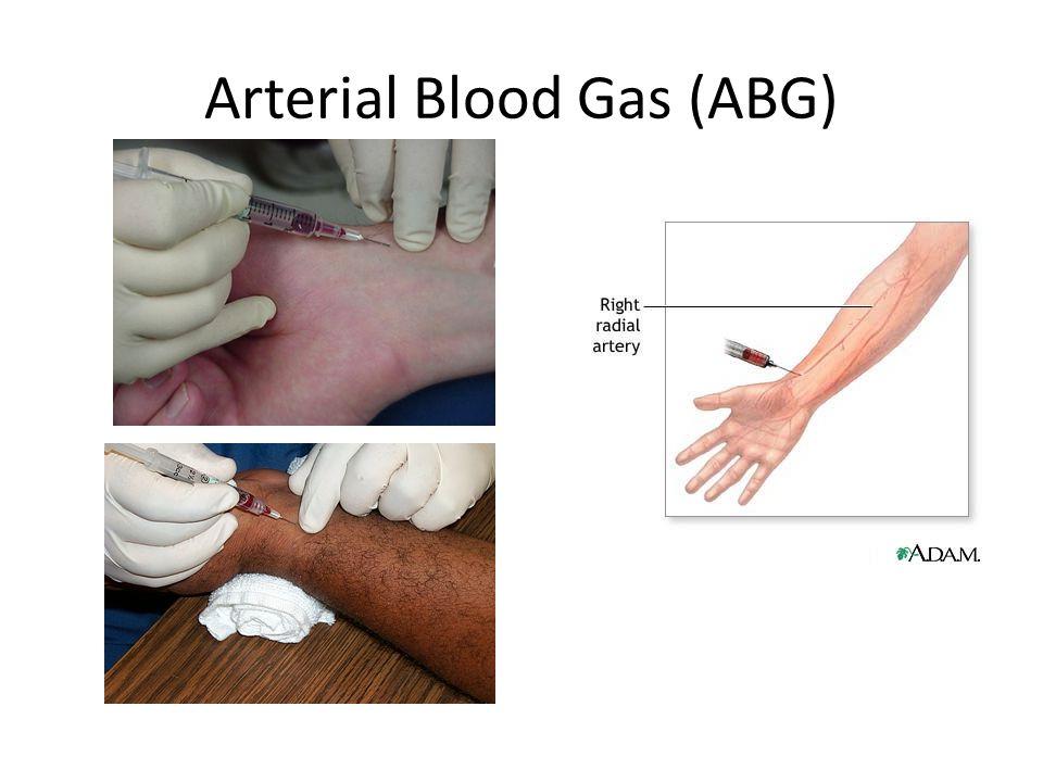 Arterial Blood Gas (ABG)