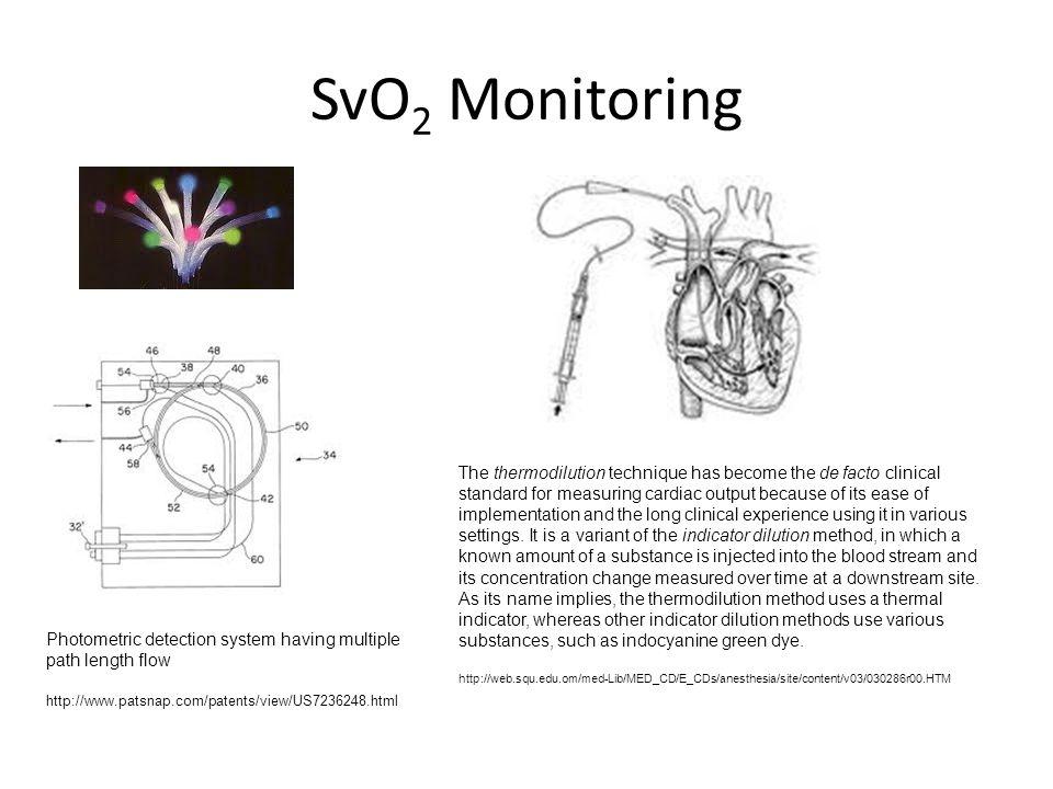 SvO2 Monitoring
