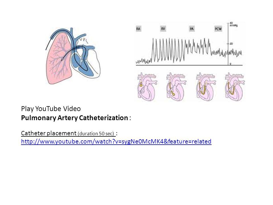 Pulmonary Artery Catheterization :