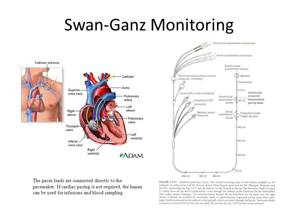 Swan-Ganz Monitoring
