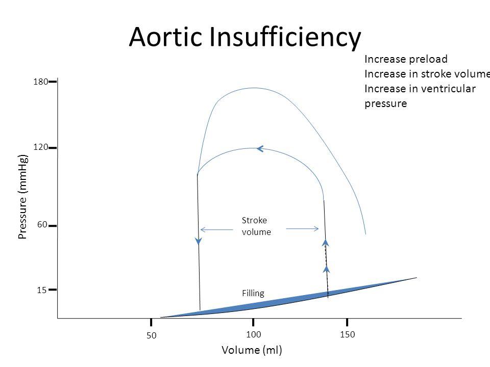 Aortic Insufficiency Increase preload Increase in stroke volume