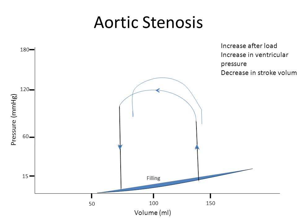 Aortic Stenosis Increase after load Increase in ventricular pressure
