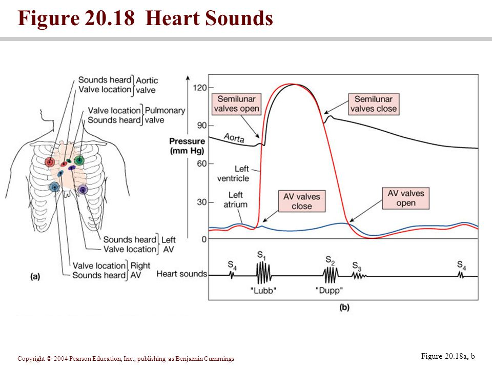 Figure 20.18 Heart Sounds Figure 20.18a, b