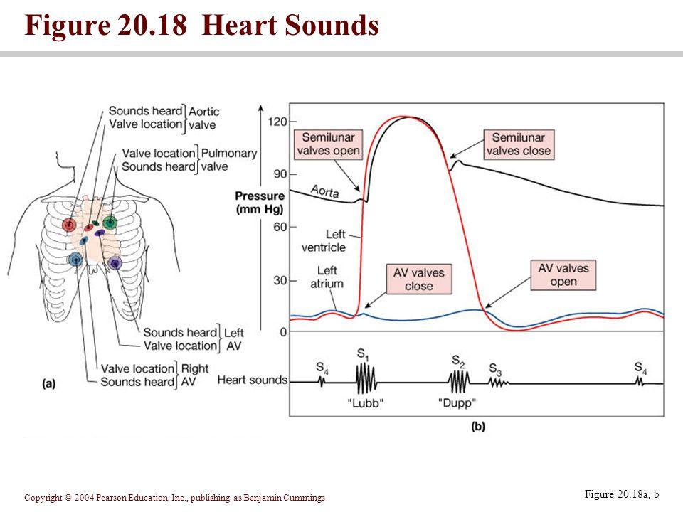 Figure 20.18 Heart Sounds Figure 20.18a, b