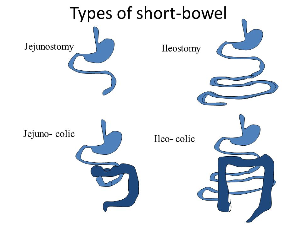 Types of short-bowel Jejunostomy Ileostomy Jejuno- colic Ileo- colic
