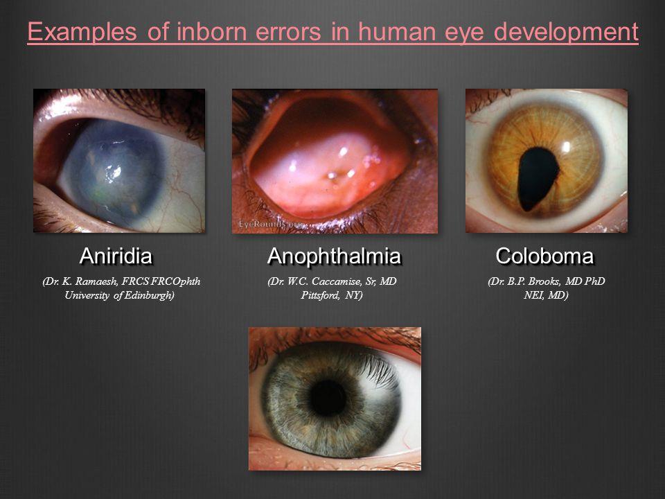 Examples of inborn errors in human eye development