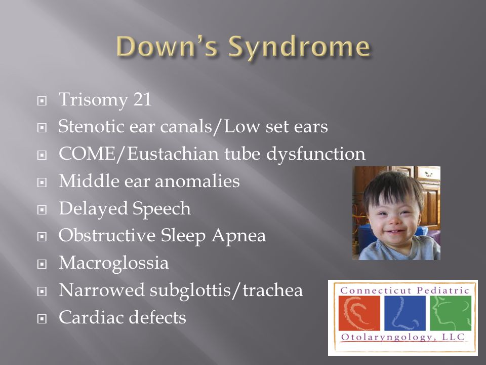 Down's Syndrome Trisomy 21 Stenotic ear canals/Low set ears