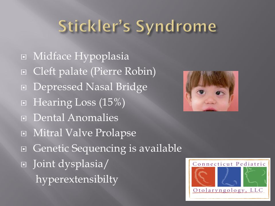 Stickler's Syndrome Midface Hypoplasia Cleft palate (Pierre Robin)