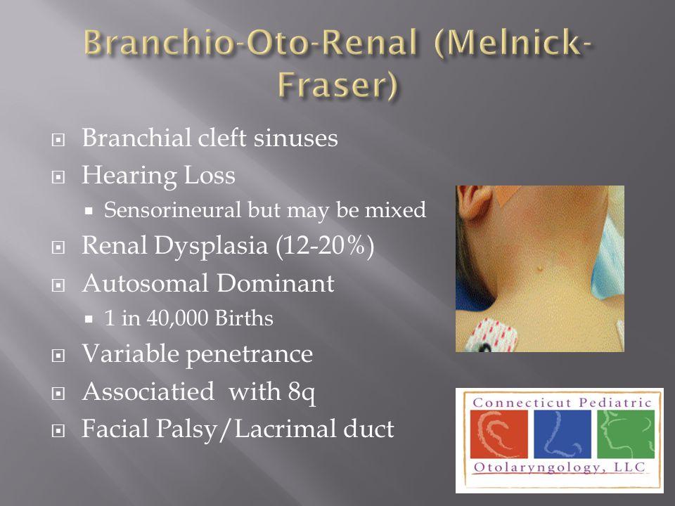 Branchio-Oto-Renal (Melnick-Fraser)