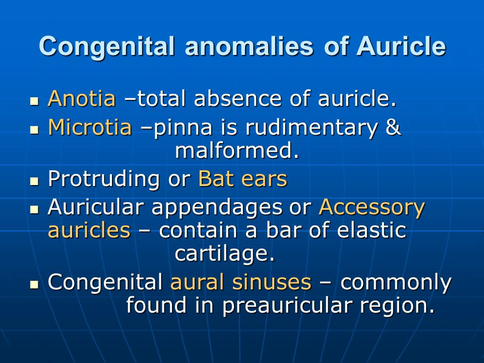 Congenital anomalies of Auricle