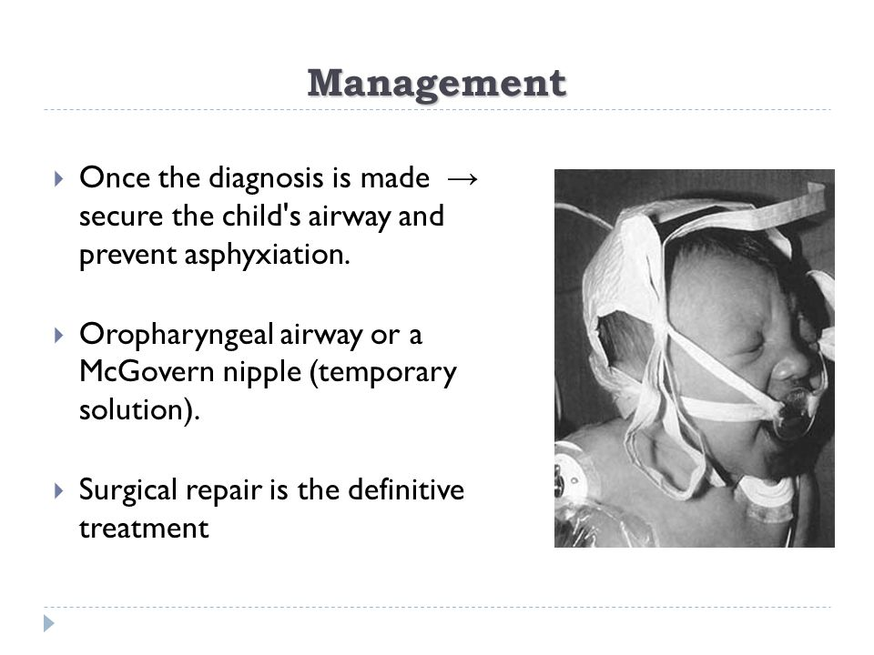 Management Once the diagnosis is made → secure the child s airway and prevent asphyxiation.
