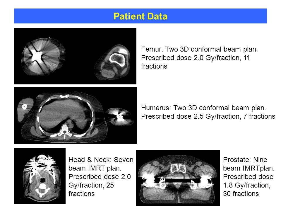 Patient Data Femur: Two 3D conformal beam plan. Prescribed dose 2.0 Gy/fraction, 11 fractions.
