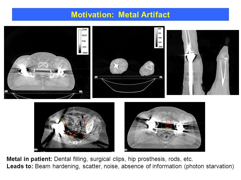 Motivation: Metal Artifact