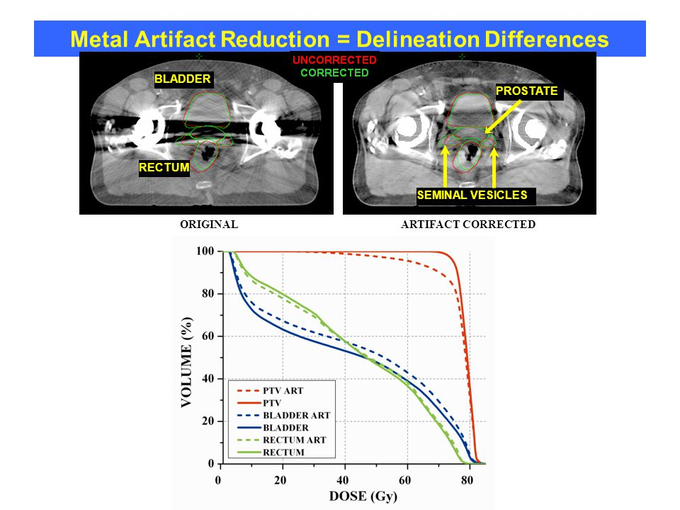 Metal Artifact Reduction = Delineation Differences