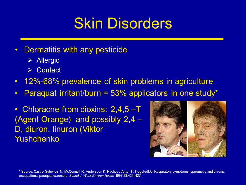 Skin Disorders Dermatitis with any pesticide