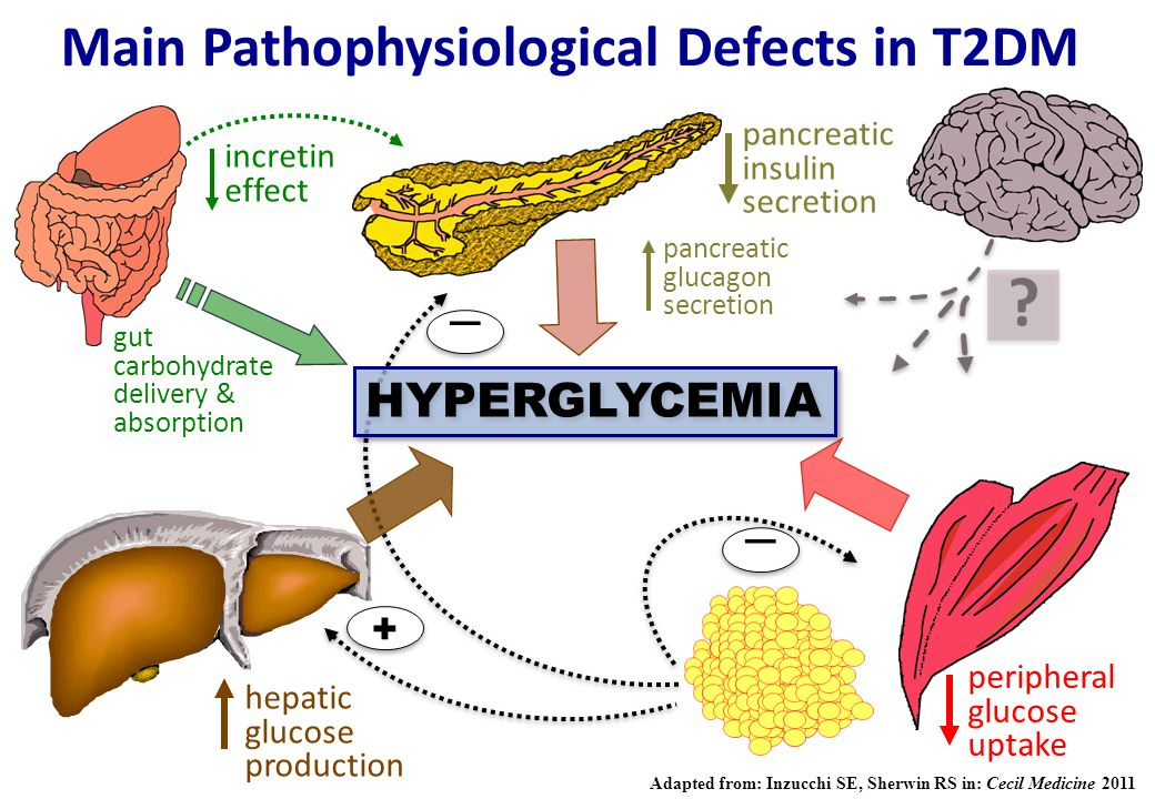 Main Pathophysiological Defects in T2DM
